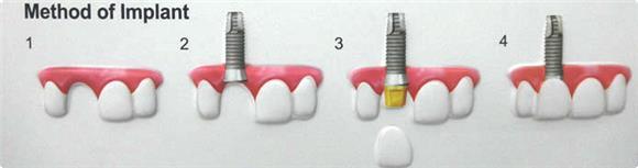 Dentalpro - First Step