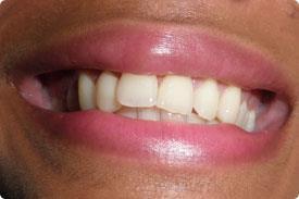 Dentalpro - Light Source
