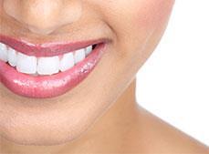 Dentalpro - Crooked Teeth